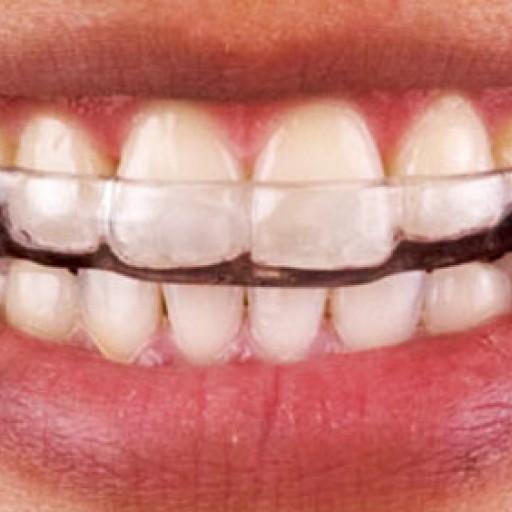 Bruxismus aneb skřípání zubů