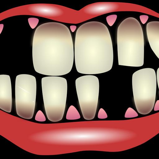 Kvalitní náhrada ztracených zubů? Zubní implantáty!