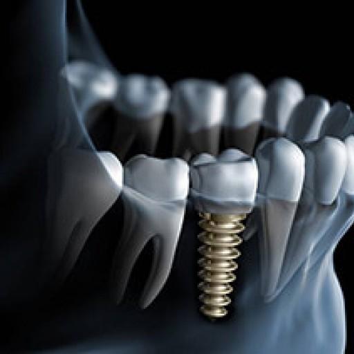 Co jsou zubní implantáty?