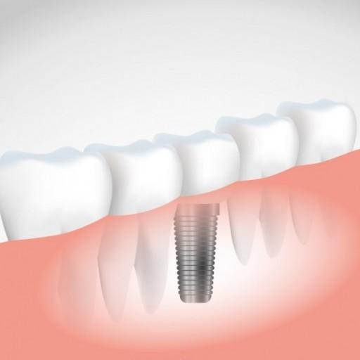 Když se rozhodnete pro zubní implantát, vyžadujte kvalitu!