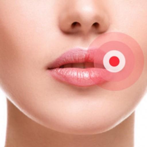 Co způsobuje herpes a afty?