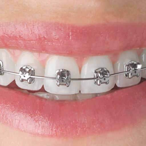 Máte křivé zuby? Rovnátka to spraví!