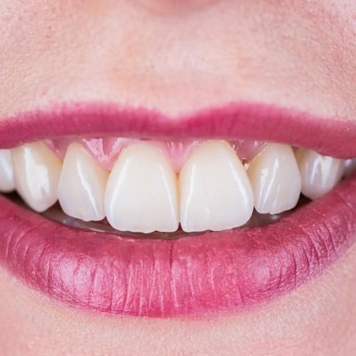 7 důvodů, proč vás trápí citlivé zuby
