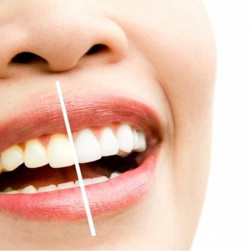 Proč vaše zuby žloutnou?