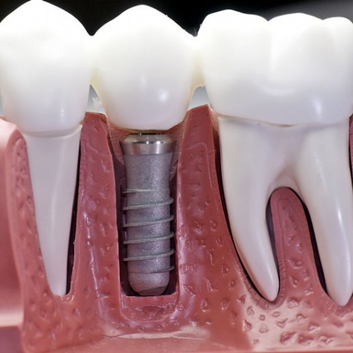 Pořiďte si zubní implantáty bezbolestně