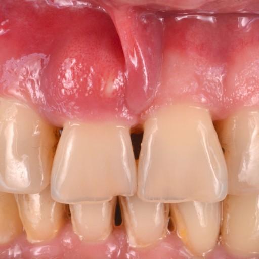 Náhrada chybějícího předního zubu