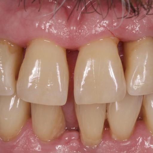 Léčba paradentózy, zubní implantáty